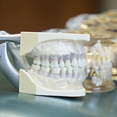 Norfolk Family Dentistry - Image of the crowns of a dental implant